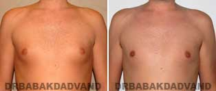 Before and After Treatment Photos.Gynecomastia Surgery - 28 year old, patient