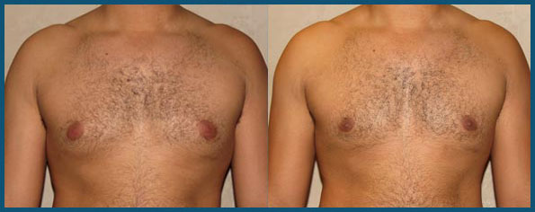 REVISION GYNECOMASTIA SURGERY before and after photo 1
