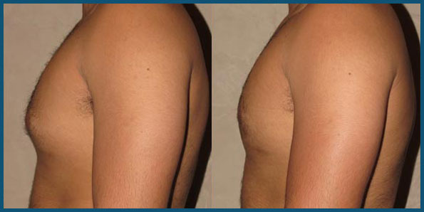 REVISION GYNECOMASTIA SURGERY before and after photo 2