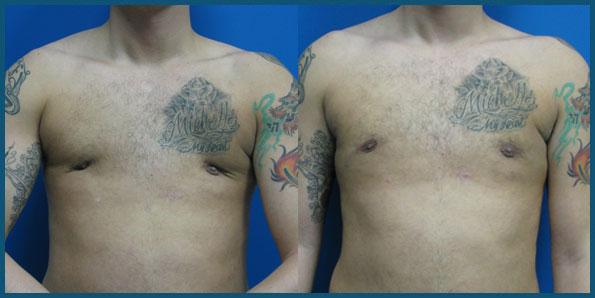 REVISION GYNECOMASTIA SURGERY before and after photo 3