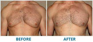 REAL BEFORE & AFTER PHOTOS. Gynecomastia - patient 1