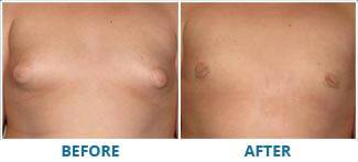 REAL BEFORE & AFTER PHOTOS. Gynecomastia - patient 2