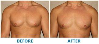 REAL BEFORE & AFTER PHOTOS. Gynecomastia - patient 3