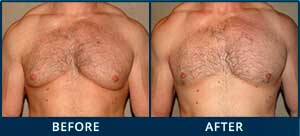 Photo Gallery: Before and After Treatment Patient Photos