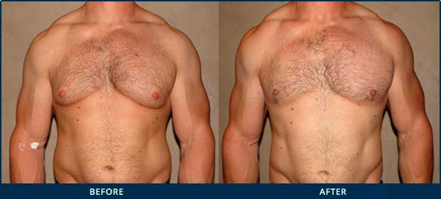 GYNECOMASTIA AND STEROID USE - Before and After Photos