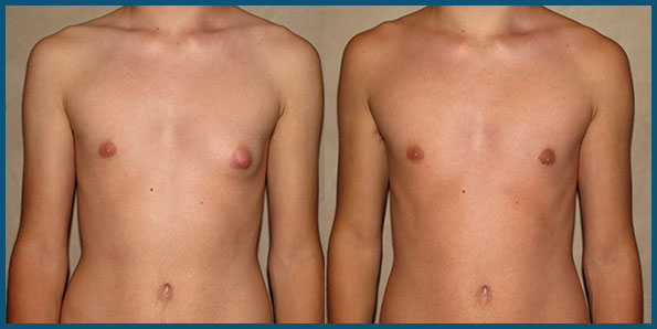 GYNECOMASTIA IN TEENS before and after photo