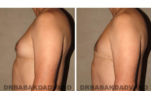 Gynecomastia. Before and After Treatment Photos - male, left side view (patient 37)