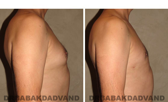 Gynecomastia. Before and After Treatment Photos - male, right side view (patient 37)