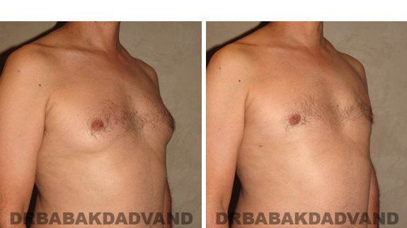 Gynecomastia. Before and After Treatment Photos - male, left side oblique view (patient 37)