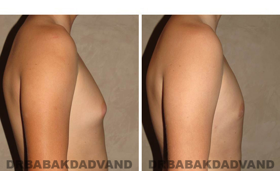 Gynecomastia. Before and After Treatment Photos - male, right side view (patient 38)