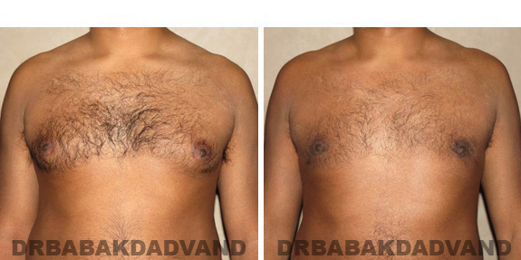 Gynecomastia. Before and After Treatment Photos - male, front view (patient 39)