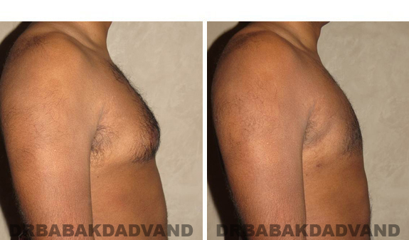 Gynecomastia. Before and After Treatment Photos - male, right side view (patient 39)