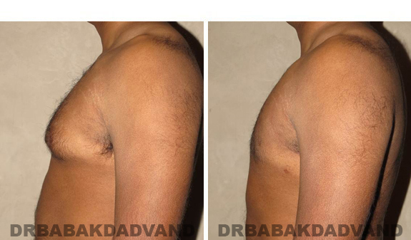 Gynecomastia. Before and After Treatment Photos - male, left side view (patient 39)