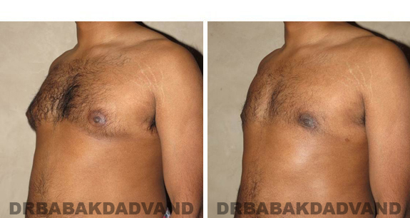Gynecomastia. Before and After Treatment Photos - male, left side oblique view (patient 39)