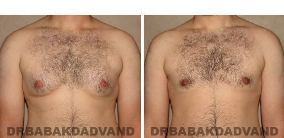 Gynecomastia. Before and After Treatment Photos - male, front view (patient 40)