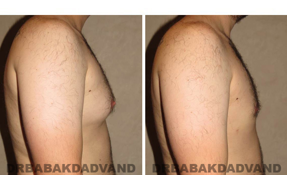 Gynecomastia. Before and After Treatment Photos - male, right side view (patient 40)