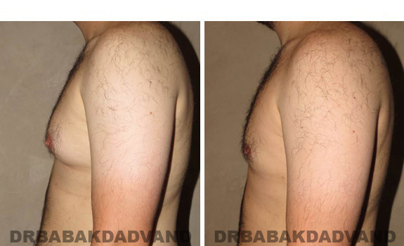 Gynecomastia. Before and After Treatment Photos - male, left side view (patient 40)
