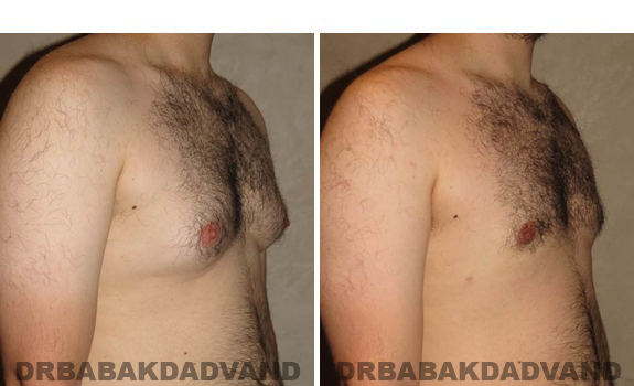 Gynecomastia. Before and After Treatment Photos - male, right side oblique view (patient 40)
