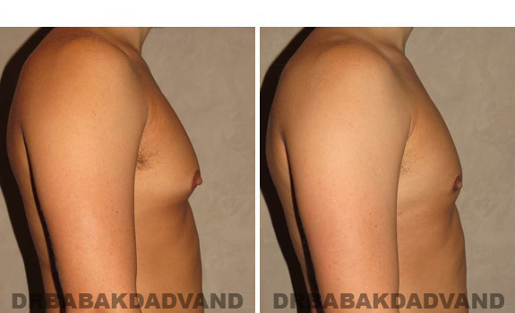 Gynecomastia. Before and After Treatment Photos - male, right side view (patient 41)