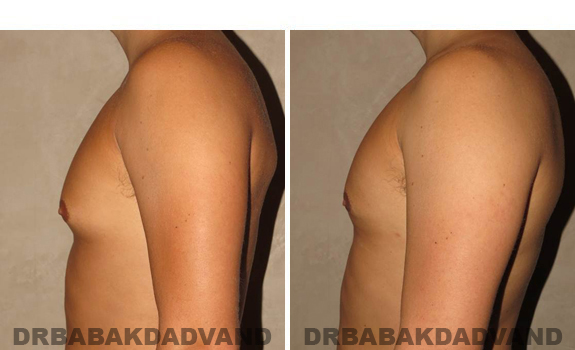 Gynecomastia. Before and After Treatment Photos - male, left side view (patient 41)
