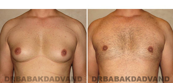 Gynecomastia. Before and After Treatment Photos - male, front view (patient 42)