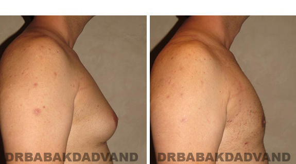 Gynecomastia. Before and After Treatment Photos - male, right side view (patient 42)