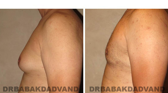 Gynecomastia. Before and After Treatment Photos - male, left side view (patient 42)