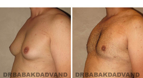 Gynecomastia. Before and After Treatment Photos - male, left side oblique view (patient 42)