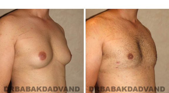Gynecomastia. Before and After Treatment Photos - male, right side oblique view (patient 42)