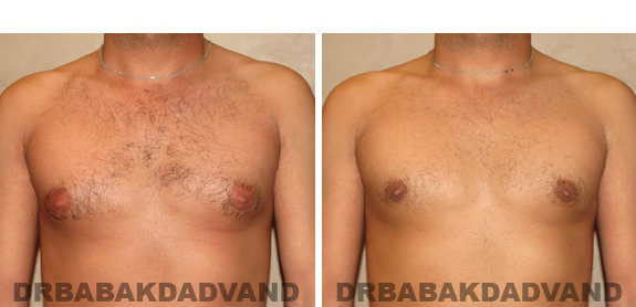 Gynecomastia. Before and After Treatment Photos - male, front view (patient 43)