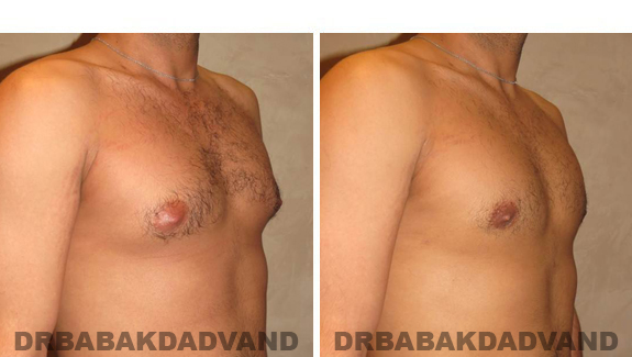 Gynecomastia. Before and After Treatment Photos - male, right side oblique view (patient 43)