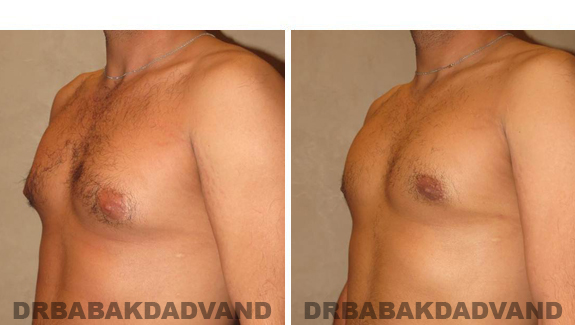 Gynecomastia. Before and After Treatment Photos - male, left side oblique view (patient 43)
