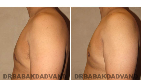 Gynecomastia. Before and After Treatment Photos - male, left side view (patient 44)