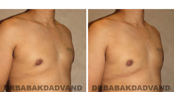 Gynecomastia. Before and After Treatment Photos - male, right side oblique view (patient 44)