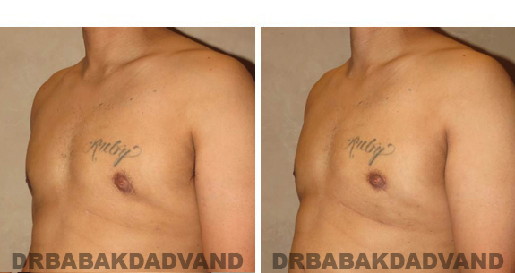 Gynecomastia. Before and After Treatment Photos - male, left side oblique view (patient 44)