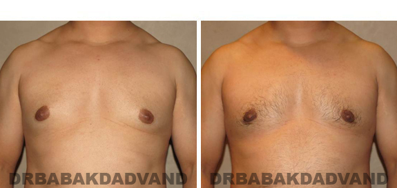 Gynecomastia. Before and After Treatment Photos - male, front view (patient 45)