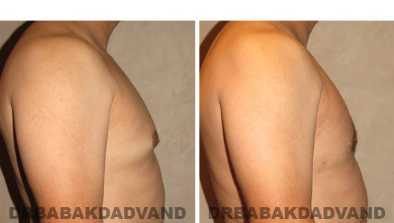 Gynecomastia. Before and After Treatment Photos - male, right side view (patient 45)
