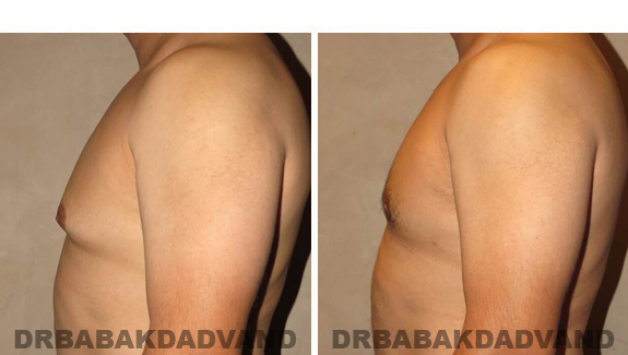 Gynecomastia. Before and After Treatment Photos - male, left side view (patient 45)