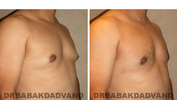 Gynecomastia. Before and After Treatment Photos - male, right side oblique view (patient 45)