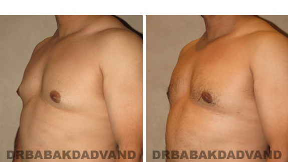 Gynecomastia. Before and After Treatment Photos - male, left side oblique view (patient 45)
