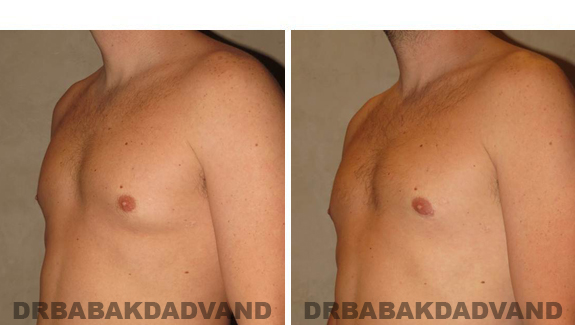 Gynecomastia. Before and After Treatment Photos , male, left side oblique view (patient 47)