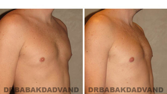 Gynecomastia. Before and After Treatment Photos , male, right side oblique view (patient 47)