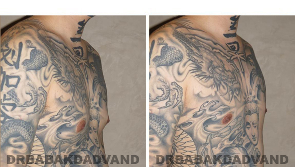 Gynecomastia. Before and After Treatment Photos  - male - right side oblique view (patient 49)