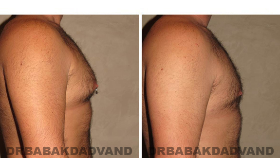 Gynecomastia. Before and After Treatment Photos - male - right side view (patient - 49)