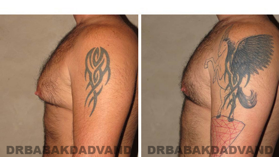 Gynecomastia. Before and After Treatment Photos - male - left side view (patient - 49)