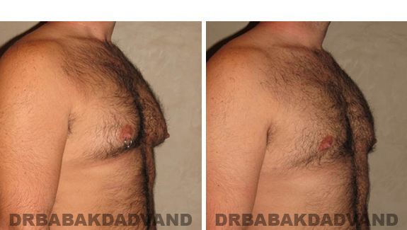 Gynecomastia. Before and After Treatment Photos - male - right side oblique view (patient - 49)