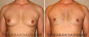 Before and After Treatment Photos: gynecomastia surgery- 35 year old patient