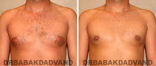 Before and After Treatment Photos: gynecomastia surgery- 32 year old patient