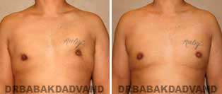 Before and After Treatment Photos: gynecomastia surgery- 34 year old patient