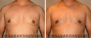 Before and After Treatment Photos: gynecomastia surgery- 27 year old patient